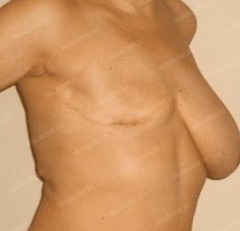 Реконструкция груди 13
