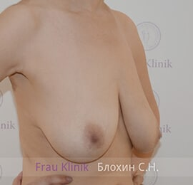 Уменьшение груди 11