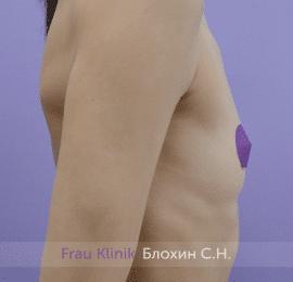 Увеличение груди 166