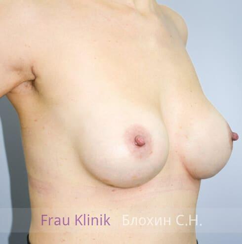 Повторная маммопластика 9