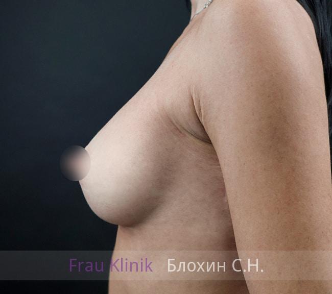 Увеличение груди имплантатами 19