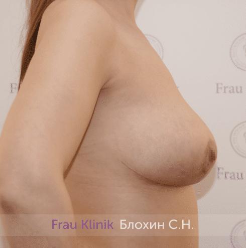 Уменьшение груди 40