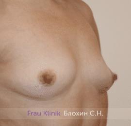 Увеличение груди 202