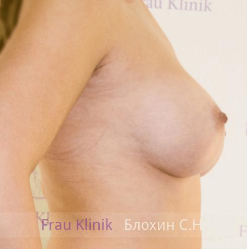 Увеличение груди 33