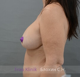 Уменьшение груди 23