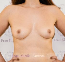 Увеличение груди 46