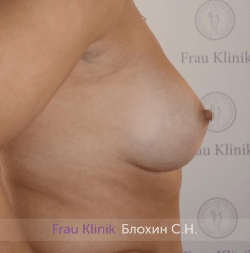 Увеличение груди 205