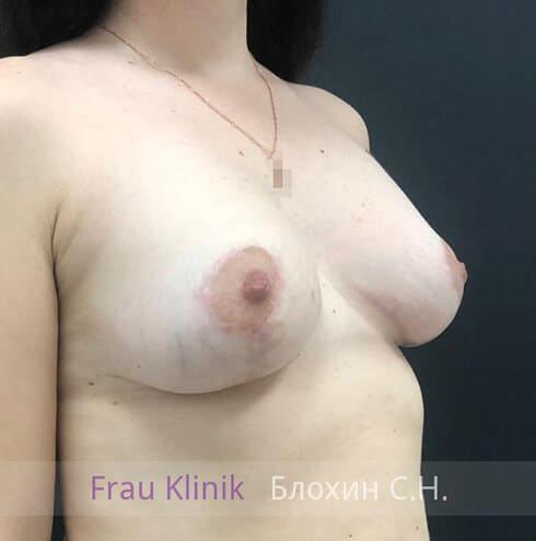 Подтяжка груди 29