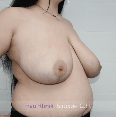 Уменьшение груди 58