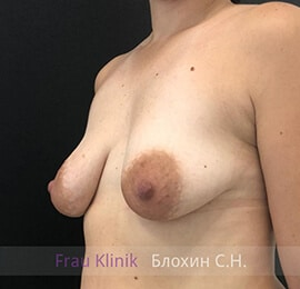 Подтяжка груди 24