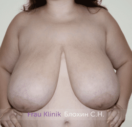 Уменьшение груди 55