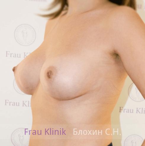 Увеличение груди 27