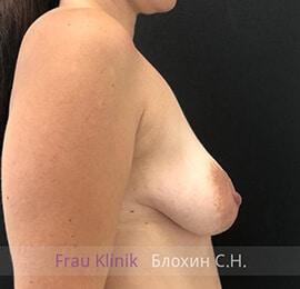 Подтяжка груди 30