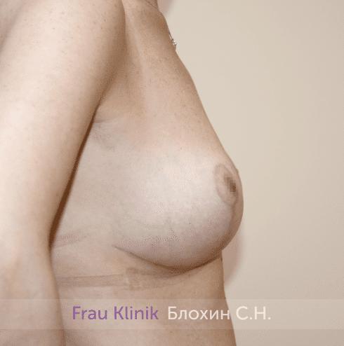 Уменьшение груди 72