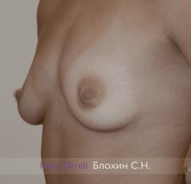 Увеличение груди 190