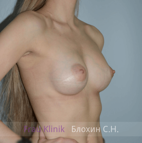 Увеличение груди 51