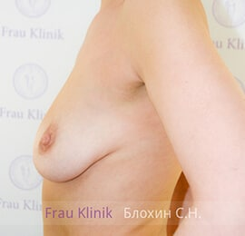 Подтяжка груди 4