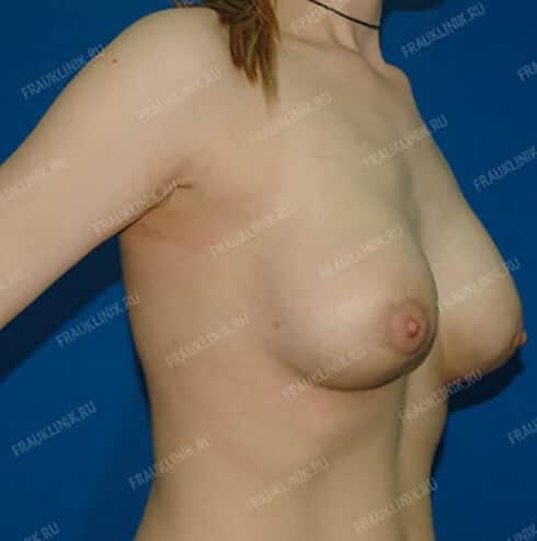 Пластика тубулярной груди 6