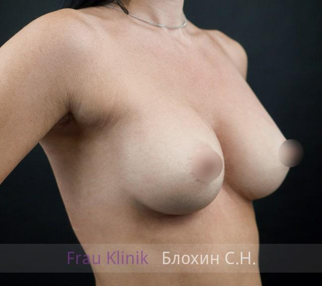 Увеличение груди имплантатами 17
