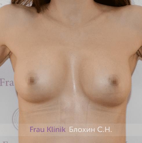 Увеличение груди 217