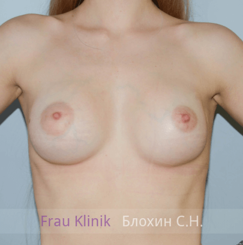 Увеличение груди 67