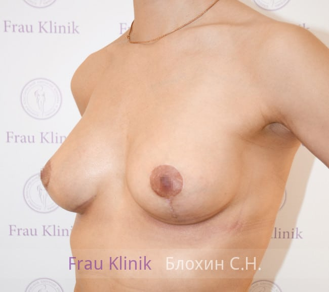 Подтяжка груди с увеличением 46