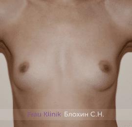 Увеличение груди 208