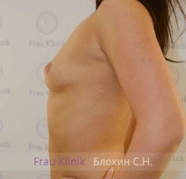 Увеличение груди 54