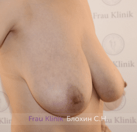Уменьшение груди 87