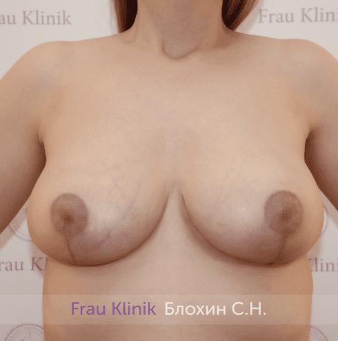 Уменьшение груди 86