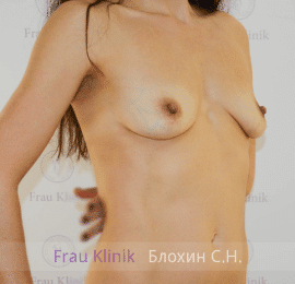 Увеличение груди 70
