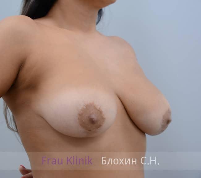 Повторная маммопластика 58