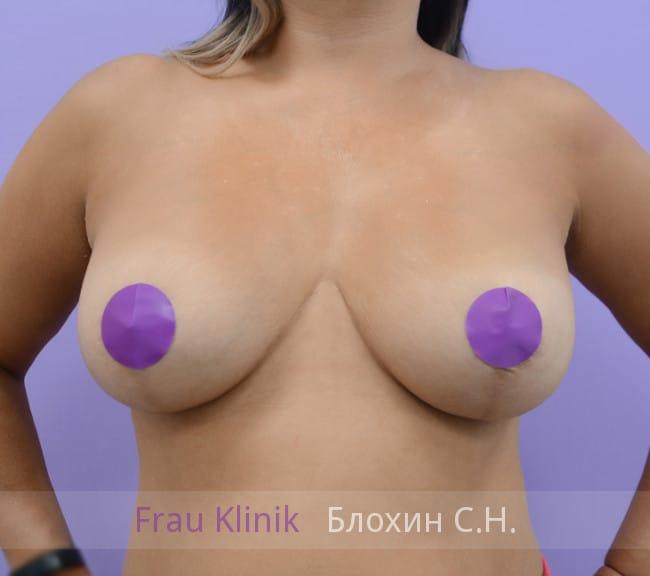 Повторная маммопластика 63