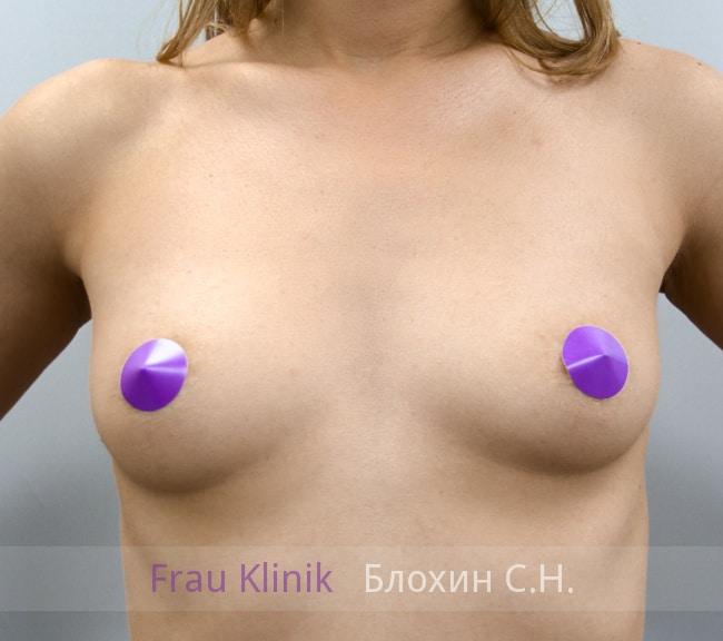 Увеличение груди имплантатами 14