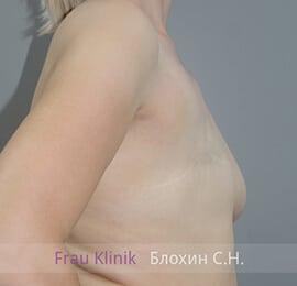 Реконструкция груди 9