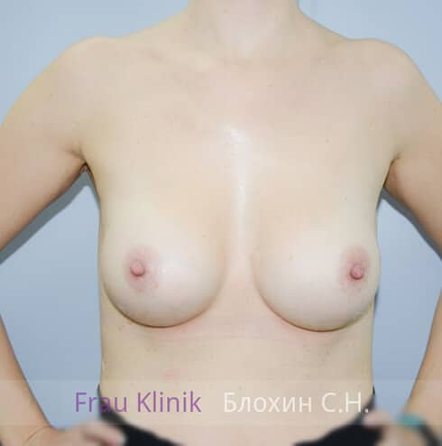 Повторная маммопластика 7