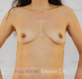 Увеличение груди 86