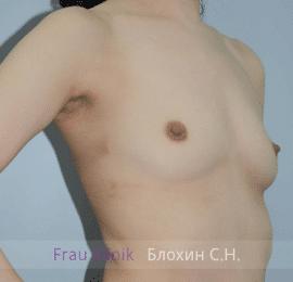 Увеличение груди 98