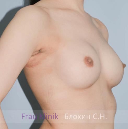 Увеличение груди 99