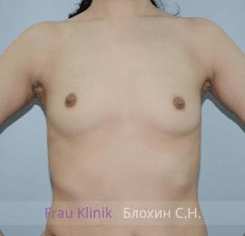 Увеличение груди 78