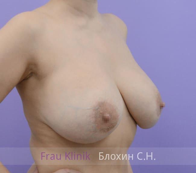 Повторная маммопластика 68