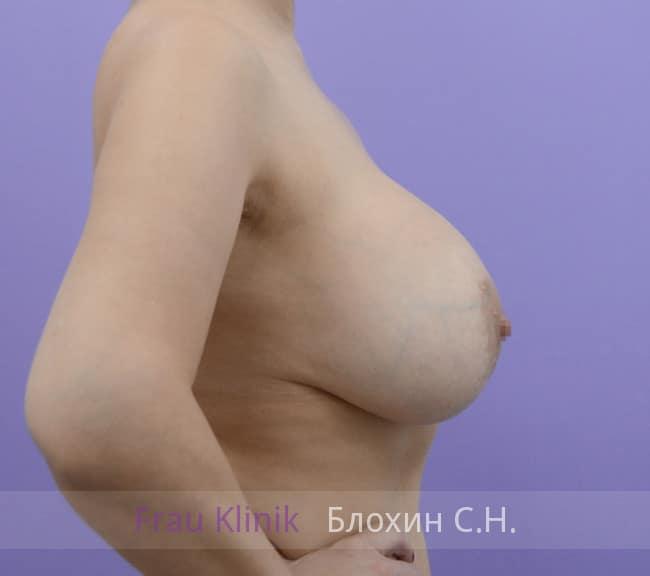 Повторная маммопластика 70