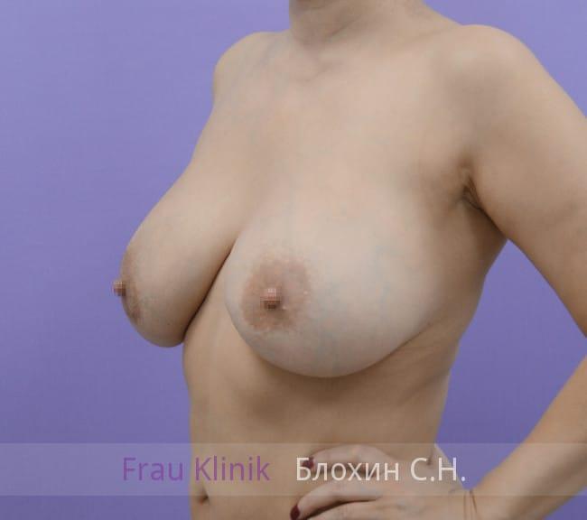 Повторная маммопластика 74