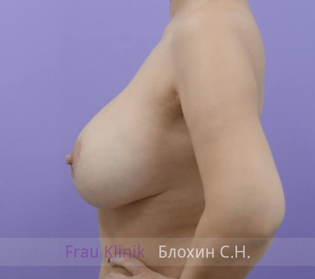 Повторная маммопластика 76