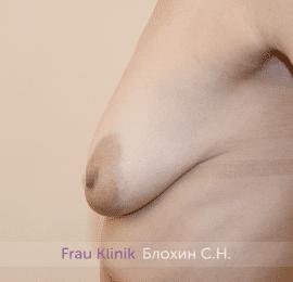Подтяжка груди 32