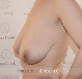 Уменьшение груди 33