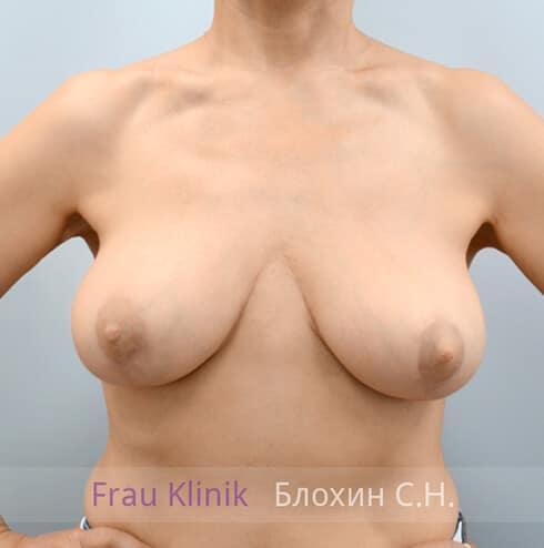 Уменьшение груди 18