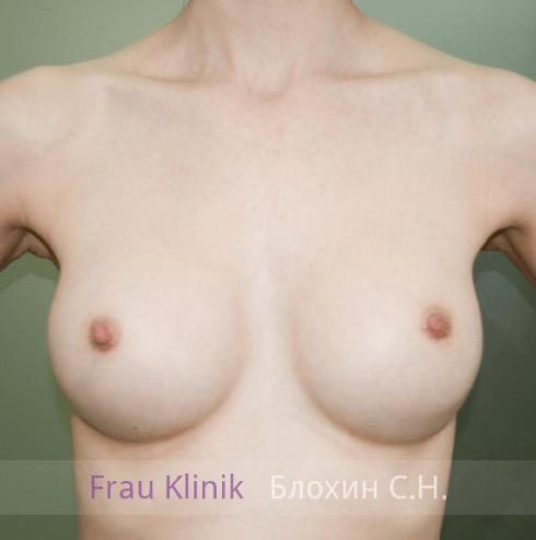 Увеличение груди 89