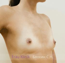 Увеличение груди 116
