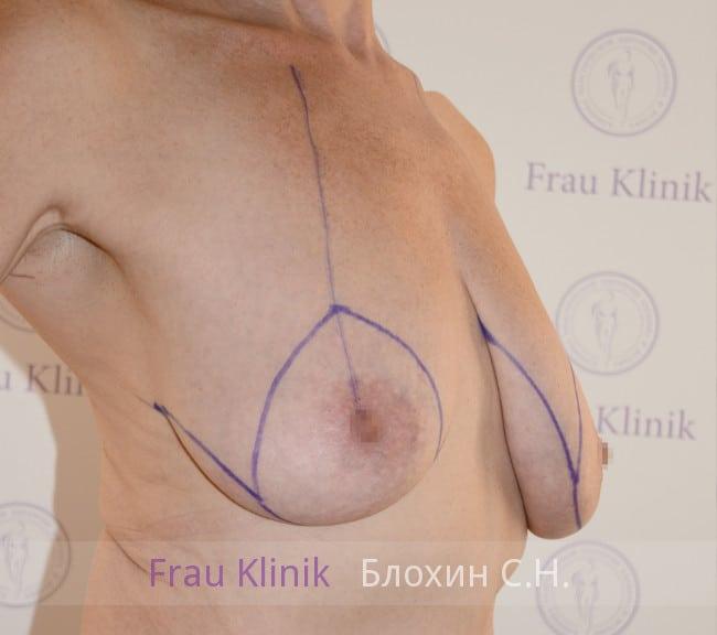 Подтяжка груди 48